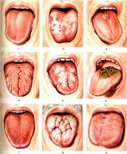 Лечение кандидозного глоссита
